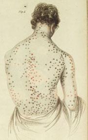 syphilis back wee